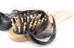 К чему снятся волосы выпавшие